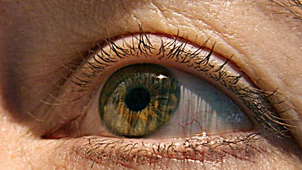 Ojo de una persona con una enfermedad oftalmológica
