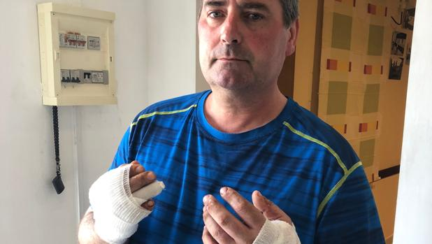 Moisés fue atacado el domingo por un perro de raza peligrosa
